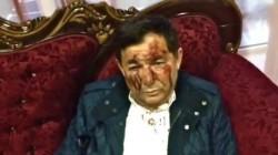 Dağıstan hükümeti dövülen parti liderini provokasyonla suçladı