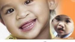 Tebessüm Operasyonu 64 çocuğun yüzünü güldürdü